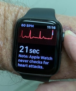 An Apple Watch displays a user's heart rate.