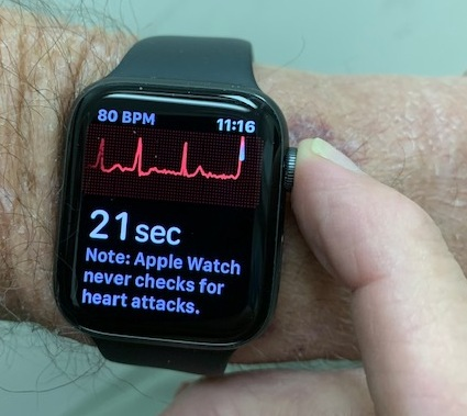 My Watch Told Me to Go to the Hospital • MyHeart