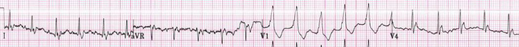 Atrial fibrillation at a rate of 130 bpm.