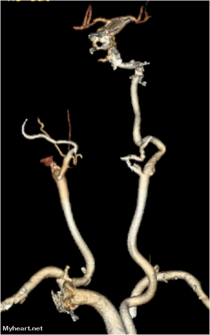 CTA or CT Angiography can provide useful and timely information for the detection of the thrombus and degree of stenosis. The picture demonstrates an occlusion of the right internal carotid artery.