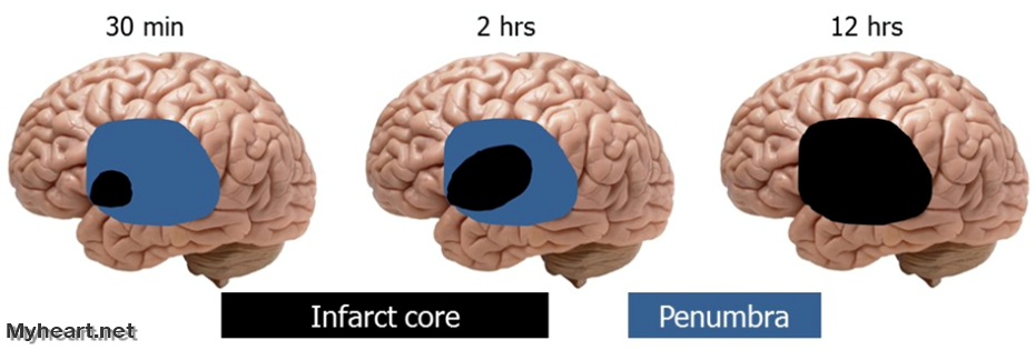 Images of a brain over the course of a stroke, showing the infarct core and penumbra.