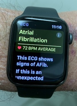 An Apple Watch displays an alert for AFib.