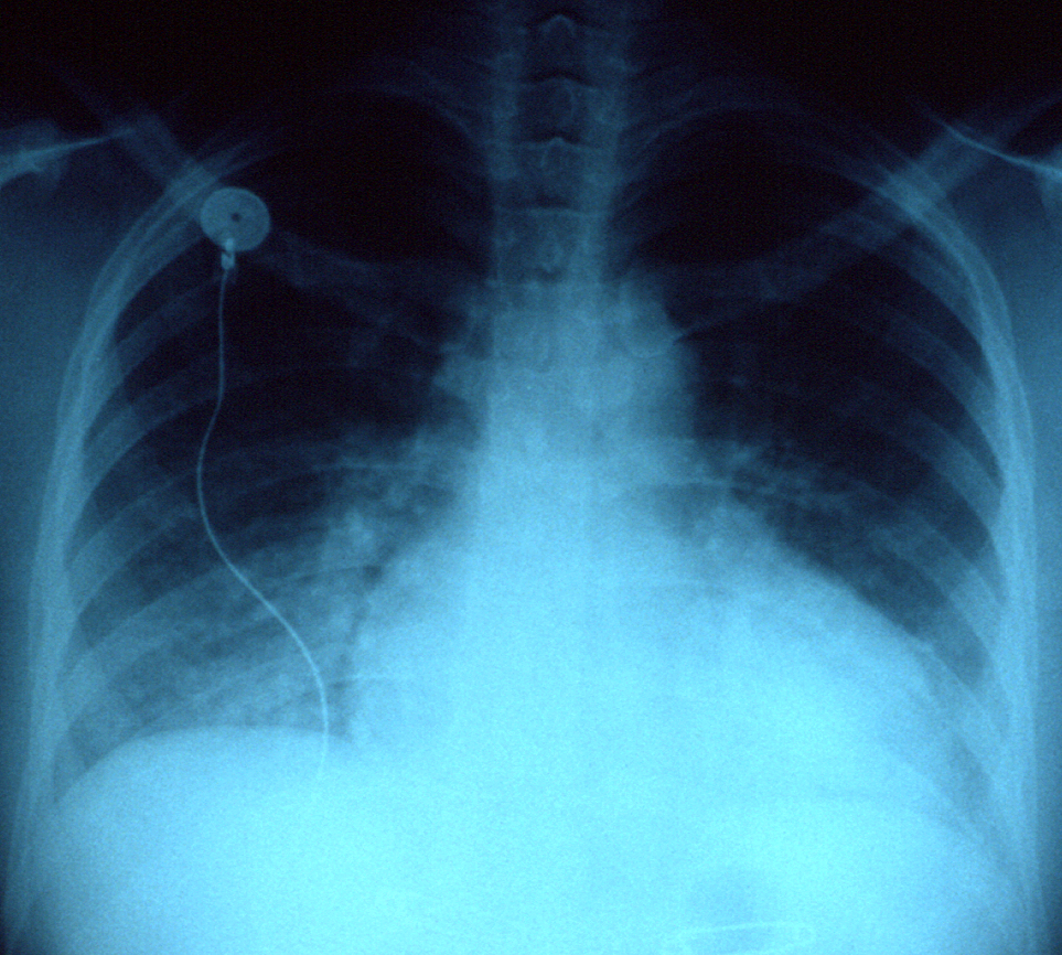 X-ray of a patient with congestive heart failure.
