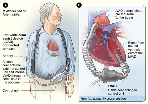 Graphic illustration of an LVAD in a patient.