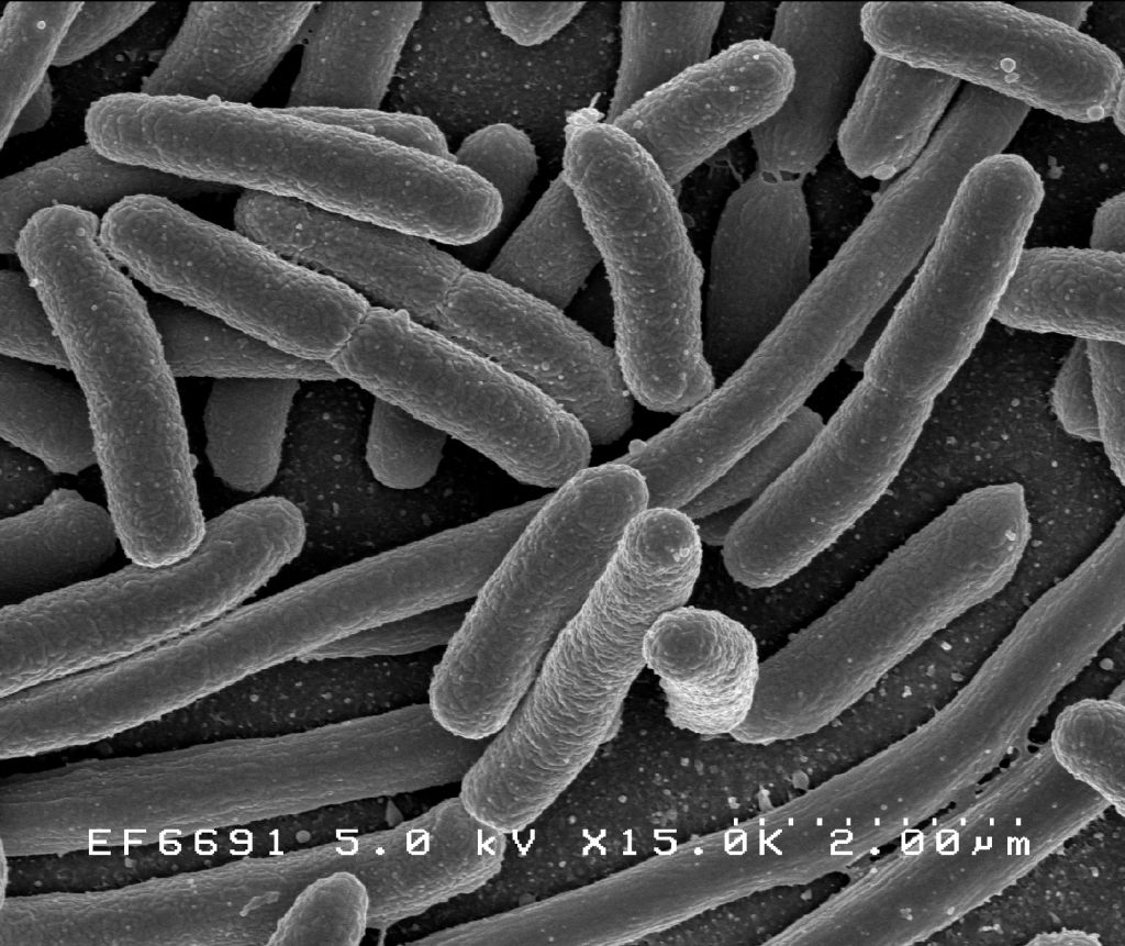 Escherichia coli, part of the gut microbiota.