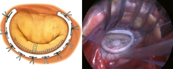 Mitral valve repair, illustrated and shown in real life.