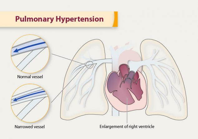 Illustration depicting pulmonary hypertension, courtesy of the CDC.
