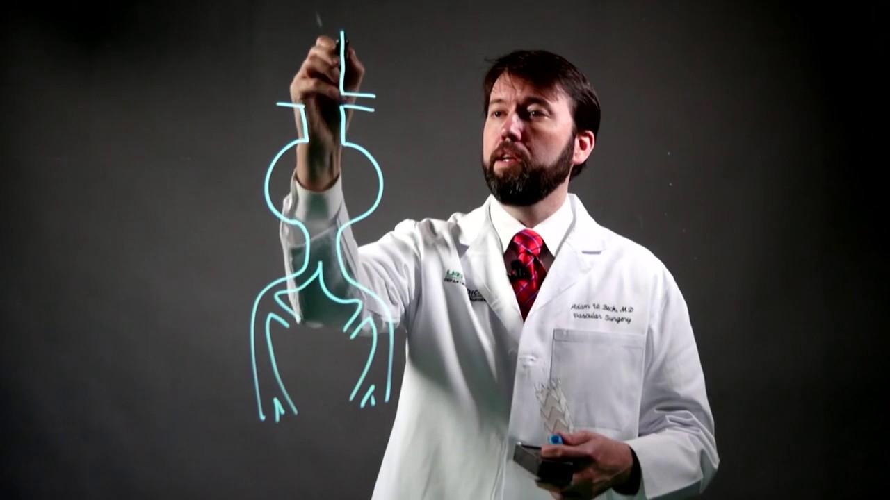 Dr. Adam Beck, an expert in abdominal aortic aneurysms.