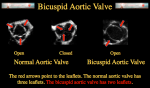 Bicuspid Aortic Valve Disease with Dr. Kyle Eudailey