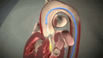 TAVR: Everything You Wanted to Know