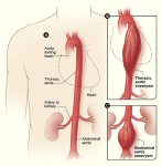 Abdominal Aortic Aneurysms In Women Are More Dangerous Than In Men