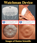 Watchman Device – Explained and FAQ's Answered by a Cardiologist