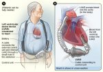 LVAD: Left Ventricular Assist Device