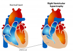 What is Cardiomegaly?