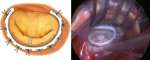 Surgical Repair of the Mitral Valve