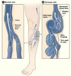 Venous Insufficiency: From Leg Pain to Spider Veins